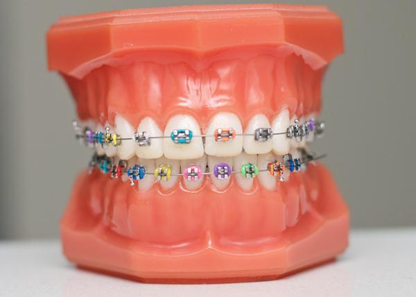 Orthodontic fixed braces