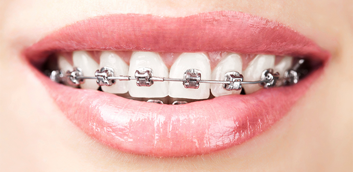 how do fixed braces work