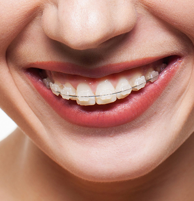 are there alternatives to braces