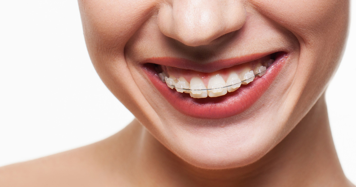 Fixed braces in Brighton and Hove