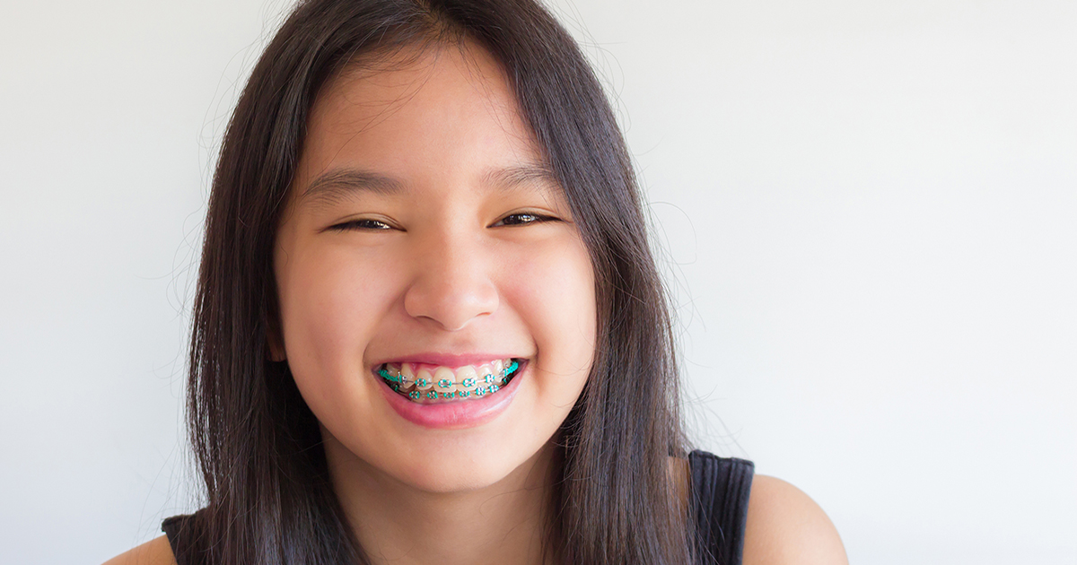 Teenage braces in Brighton and Hove