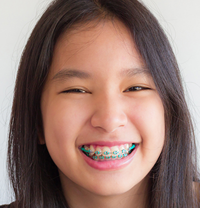 Best age for braces
