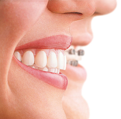 adult braces invisalign