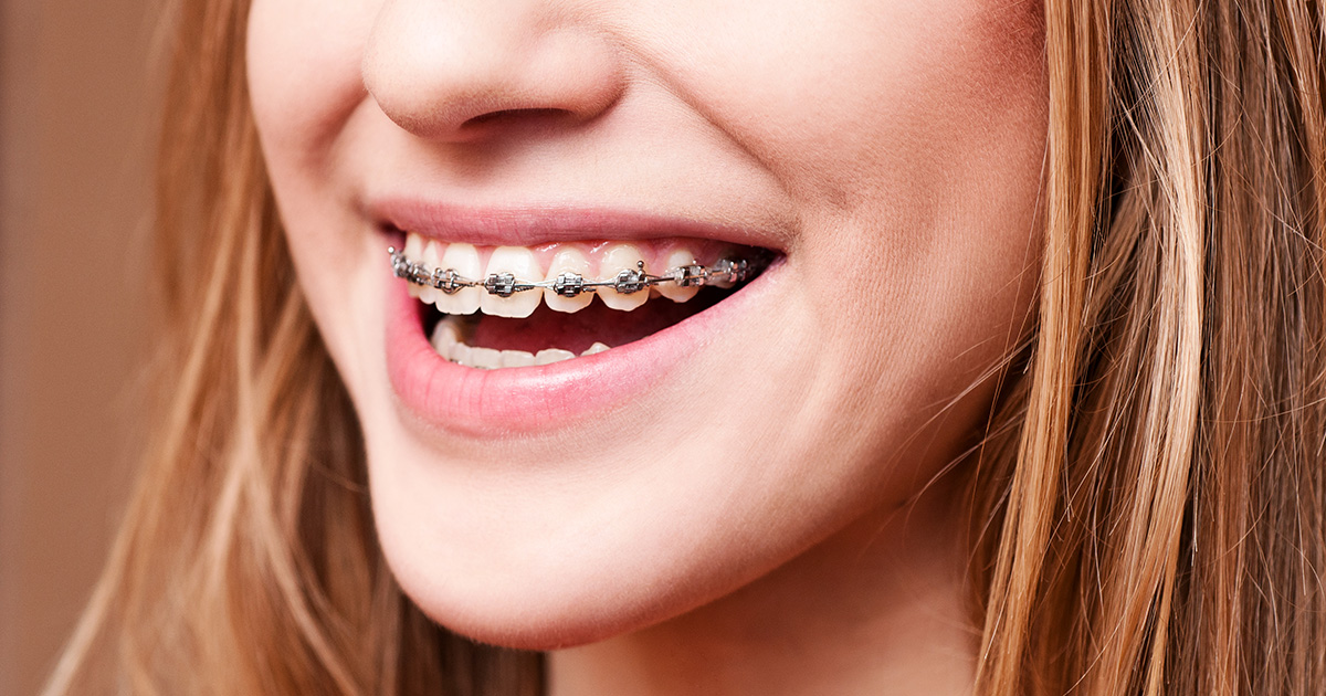 Waiting list for NHS braces