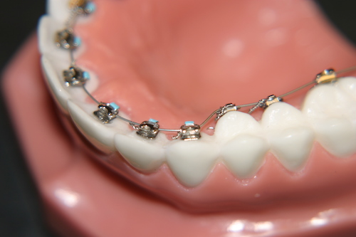 how do lingual braces work?