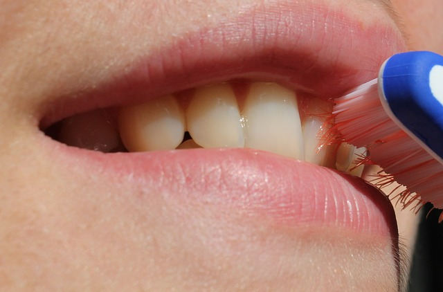 poor brushing with braces