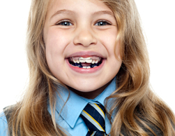 Orthodontists Kent