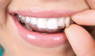 Removable retainer